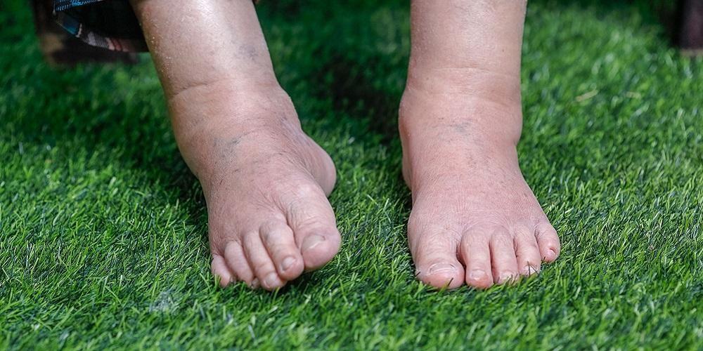 Tak hanya bengkak pada perut, penderita asites juga mengalami bengkak di bagian kaki