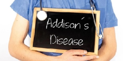 Penyakit addison adalah salah satu gangguan hormon pada wanita