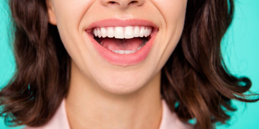 Manfaat cuka apel bisa memutihkan gigi