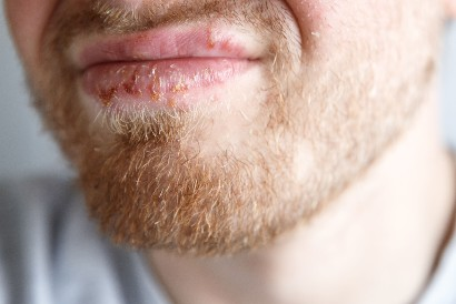 Petting bisa meningkatkan risiko penularan herpes oral