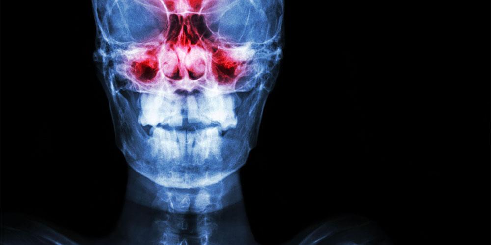 Bahaya sinusitis adalah jika terjadi komplikasi ke area sekitar hidung dan otak