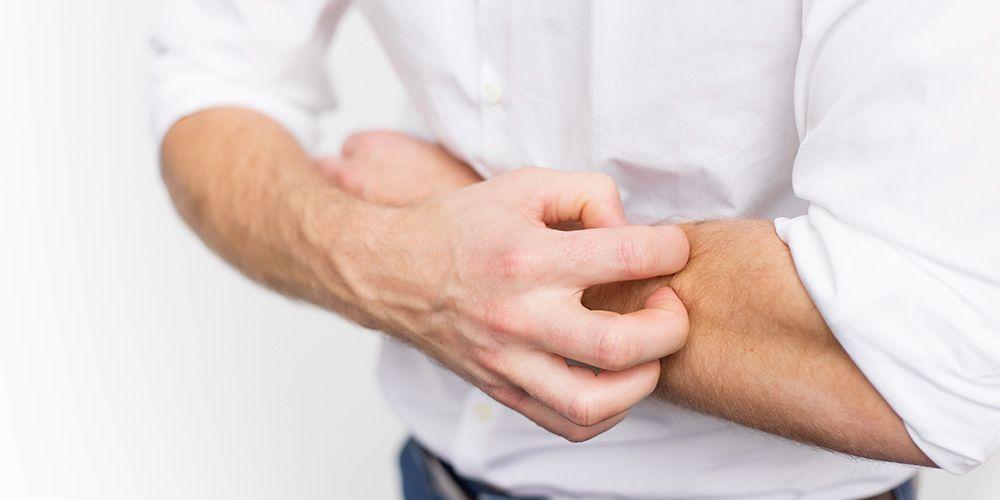 Dermatitis kontak merupakan penyebab gatal setelah mandi