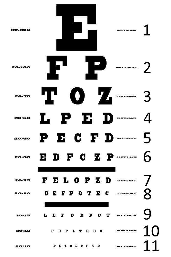 Tes mata minus salah satunya tes ketajaman penglihatan
