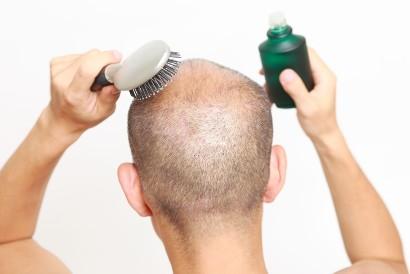 Vitamin rambut pria seperti vitamin E terkandung dalam hair serum