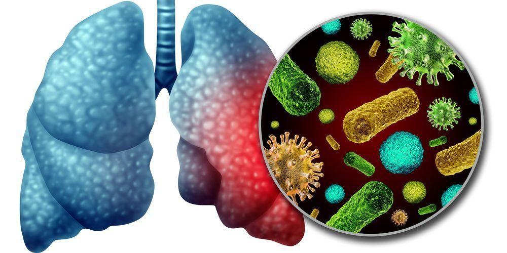 Infeksi virus korona disebabkan oleh strain virus yang baru
