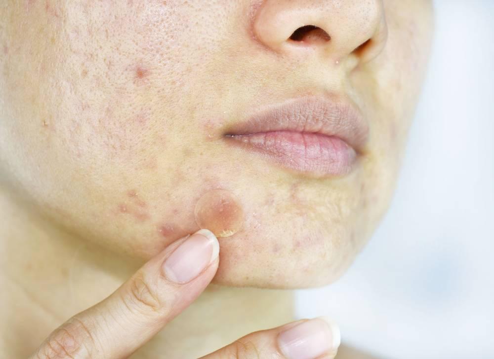 apakah acne patch efektif untuk mengobati jerawat?