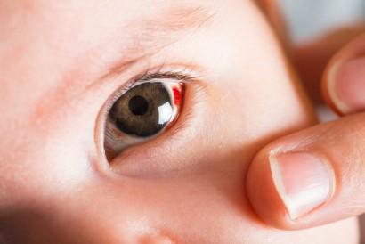 Konjungtivitis atau mata merah bisa juga terjadi pada bayi